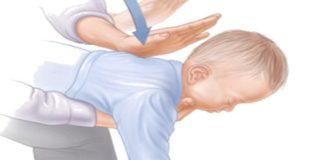 manovra di disostruzione pediatrica