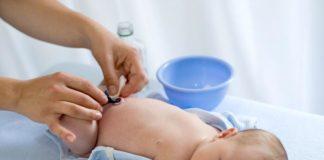 Ernia ombelicale del neonato, scopriamo le cause e cosa fare